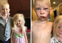6-Year-Old Brave Boy Is Praised For Saving His Sister From Dog Attack – Paws Planet – World Animal News